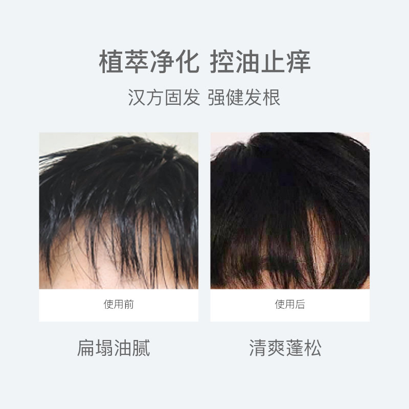 控油去屑固發淨蟎 氨基酸男士香氛洗髮水